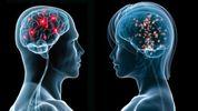 Чим відрізняється чоловічий і жіночий мозки – деякі пункти вас здивують