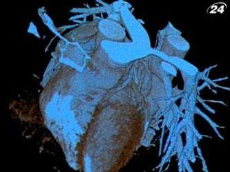 Катетеризация сердца - один из новейших методов диагностики сердца