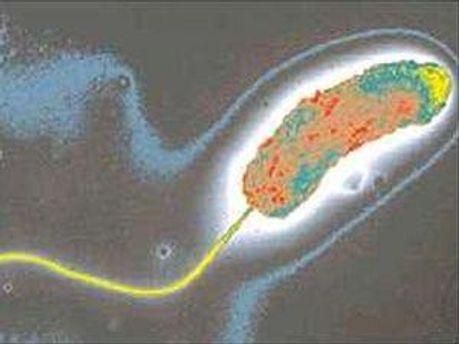 Вибрионы холеры обнаружили на Запорожье