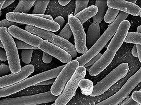Инфекцию провоцирует ранее неизвестный вид бактерий