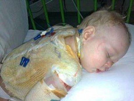 У младенца обнаружили синдром ошпаренной кожи