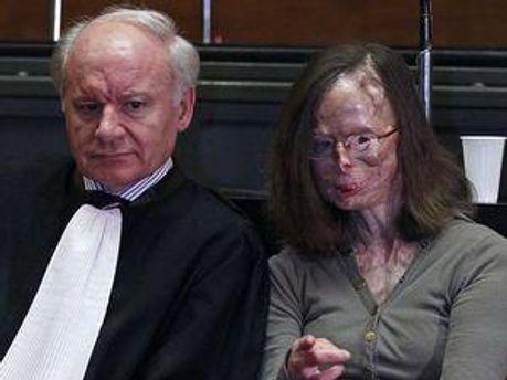48- річна жінка перенесла 86 операцій