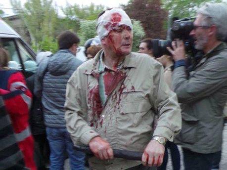 Пострадавшие в Донецке