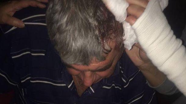 Активісту розбили голову.