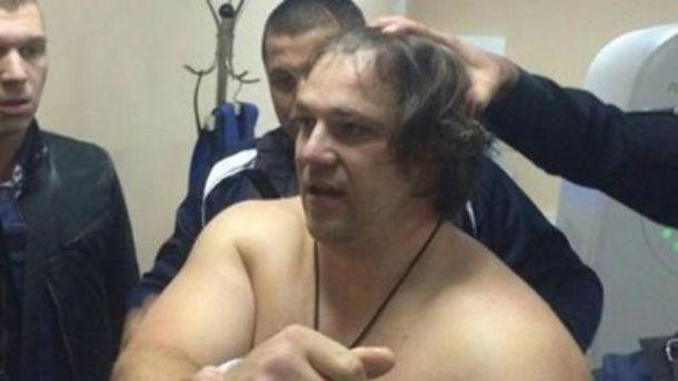 В полиции говорят, что Пугачев был в машине сам