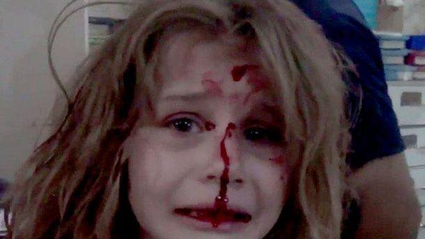 Поранена дівчинка у Сирії