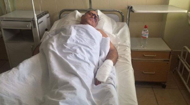 ВОдессе избили оппозиционного депутата