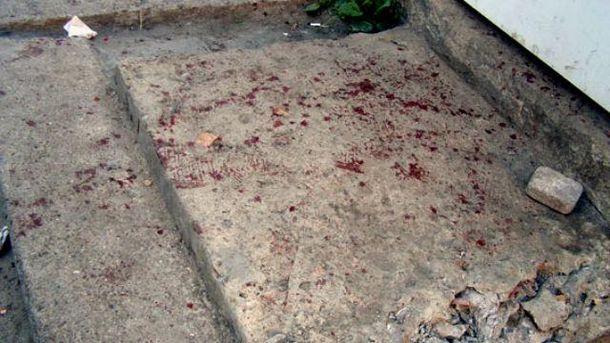 Укафе Одеси сталася бійка і різанина, загинув чоловік